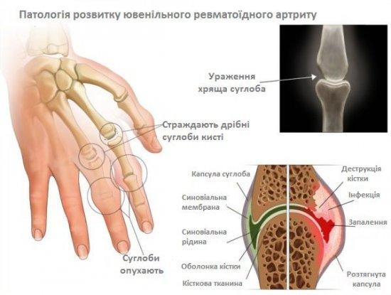 Ревматоїдний артрит може призвести до інвалідності